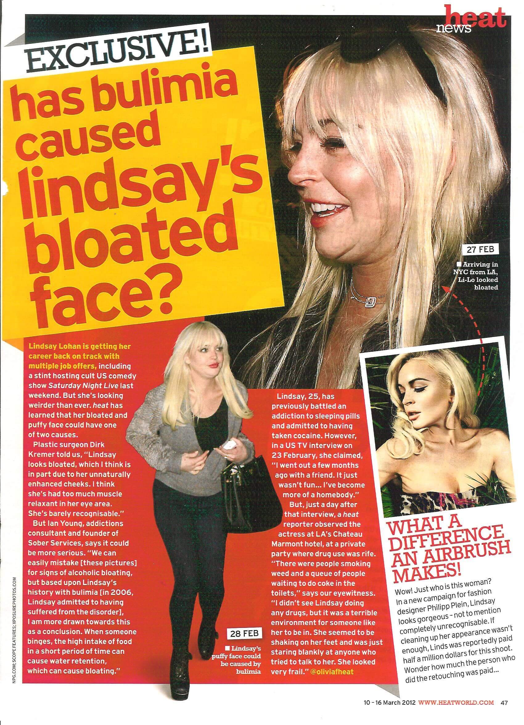Heat Magazine Has Bulimia Caused Lindsay Lohans Bloated Face